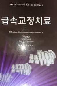「加速矯正の韓国版